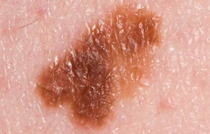 melanoma treatment | skin cancer treatment | leeds yorkshire | uk, Human Body