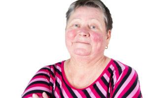 Medical Dermatology  Leeds Yorkshire UK